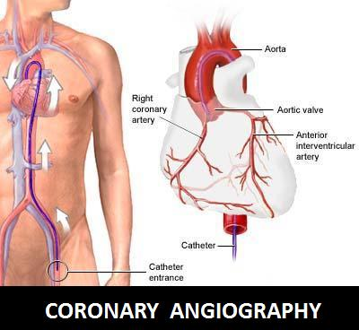 Coronary Angiography Procedure
