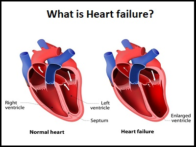 Dr. Rahul Patil - Best Cardiologist in Pune
